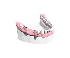 Mise en place des Implants Dentaires