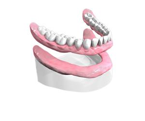 Toutes les dents absentes