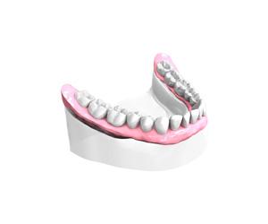 Bridge céramique sur Implants dentaires